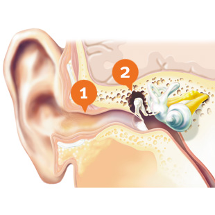 how to get disability for hearing loss