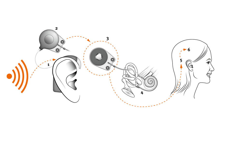 a look at cochlear implants in medicine Read about the main treatments for permanent hearing loss  including what the main types look like and how to get them on the nhs or cochlear implants.