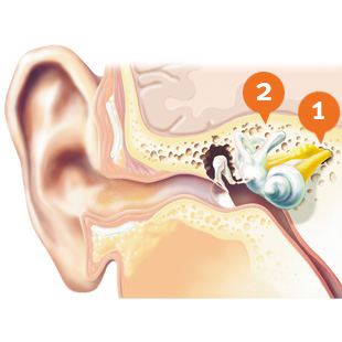 310x310-sensorineural-hearing-loss